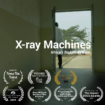 X-ray Machines: Africa's Broken System